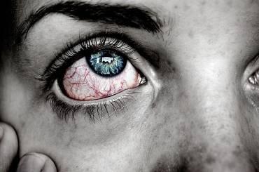 Arrossamento degli occhi: quali sono le cause?